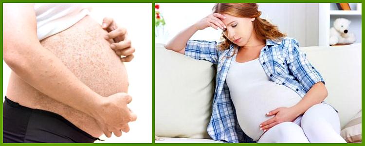 Нормативы причины кожного зуда по ночам у беременных форум гражданство Российской
