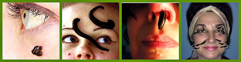 girudoterapiya-v-kosmetologii