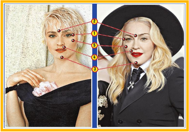 характерные изменения кожи по возрасту