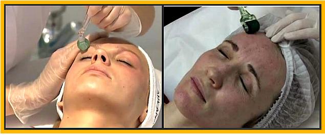 омоложение кожи лица мезороллером