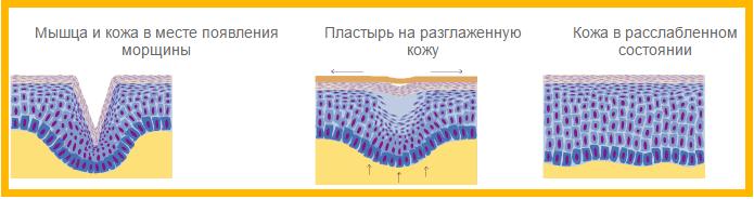 действие пластыря на кожу