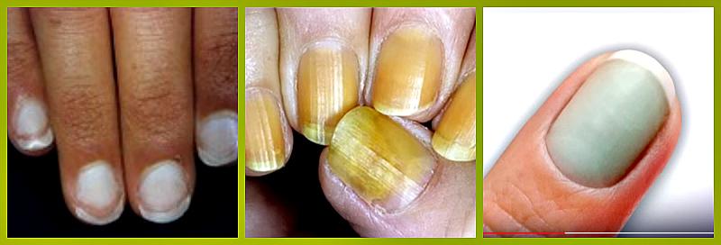 цвет ногтевой пластинки