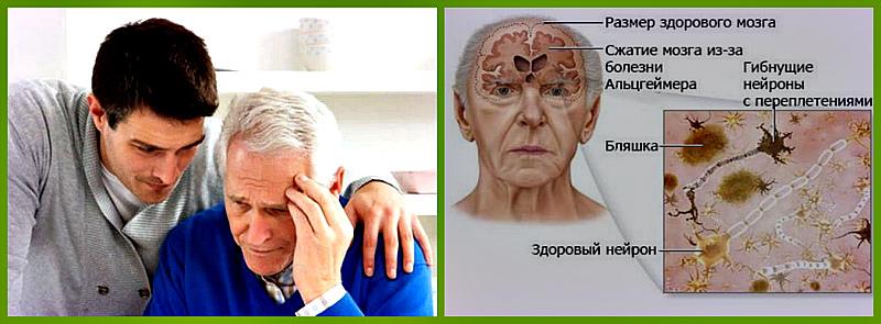 stadii-bolezni-altsgejmera