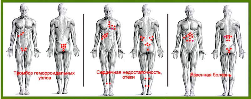 На какие учаски тела ставят пьявки при заболевании суставов приборы для лечения суставов и мышц