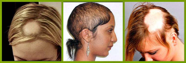 vidy-alopetsii