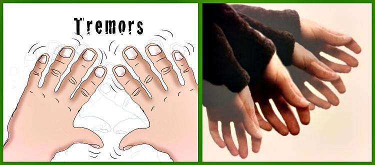 причины тремора рук