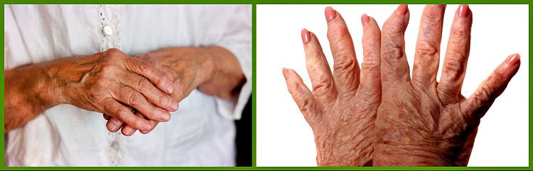 проявление признаков на руках