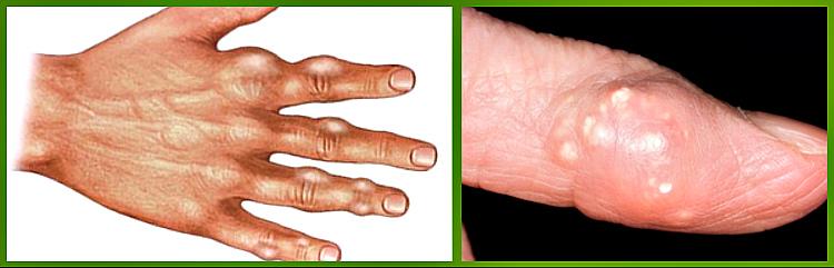 Остеопороз лечение каширская
