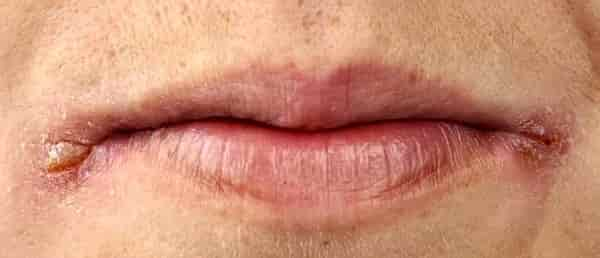 Почему образуются заеды в уголках рта и как их лечить народными средствами