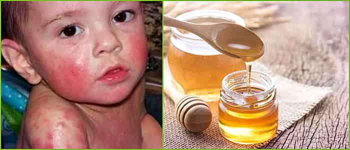 аллергия у детей на мед