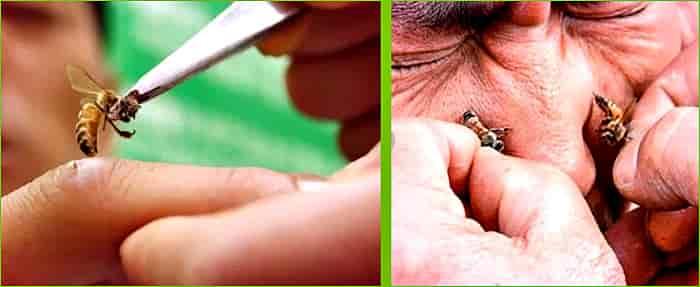 какие болезни лечат укусами пчел