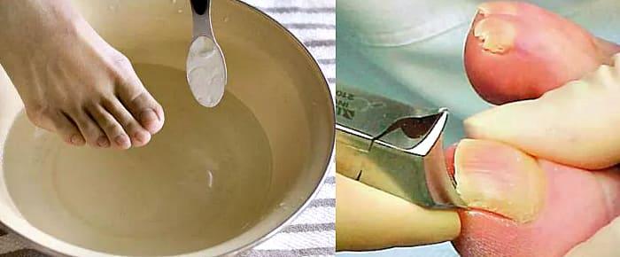обработка больных ногтей