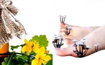 чистотел от грибка ногтей на ногах
