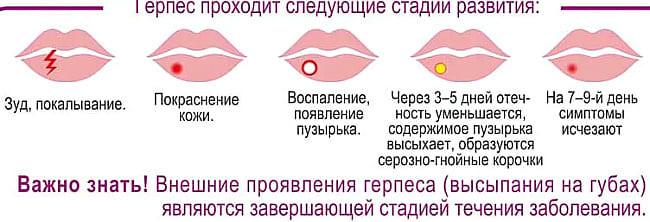 simptomy-gerpesa