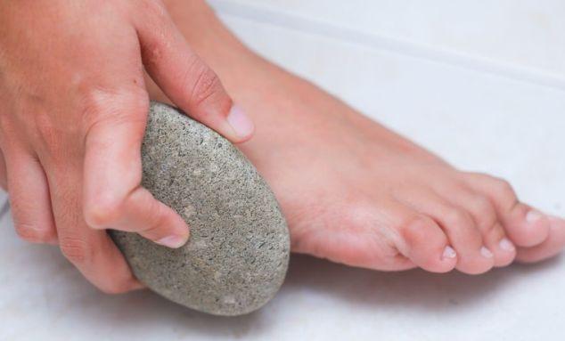 Трещины на пятках - причины, лечение в домашних условиях